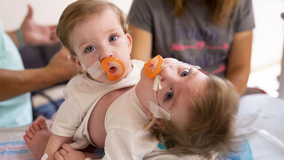 Doctors at the University of Michigan have separated 1-year-old conjoined twin sisters.